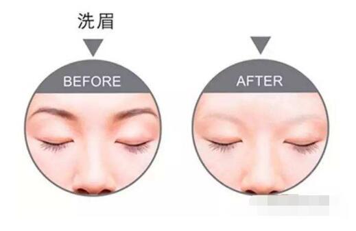 洗眉后可能會出現這些反應