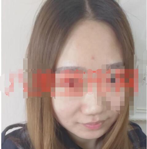 四川军大医院做隆鼻案例 反馈半年美鼻变化心得 附加照片