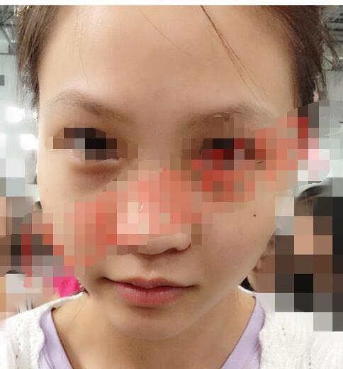 南京华美整形做隆鼻案例 八个月后美鼻的变化美美哒