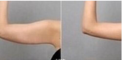 今日分享:了解手臂吸脂攻略