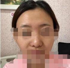 北京八大處整形范飛醫生隆鼻案例 術后2個月鼻子很好 真的很高興