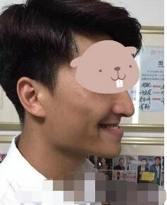 北京八大處整形張智勇醫生正頜手術案例 術后我也是帥哥一枚了