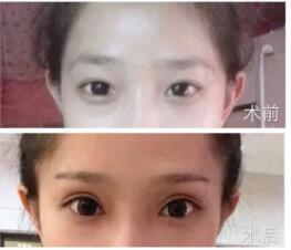 廣州華美整形潘貳醫生全切雙眼皮+開眼角案例 分享我的美給大家看