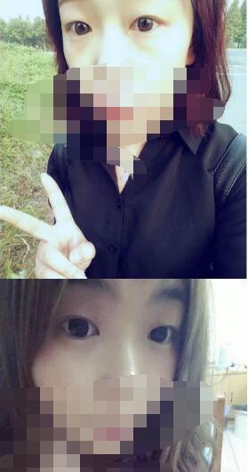 南京華美整形雙眼皮+開眼角案例 看看我術后恢復是不是很好