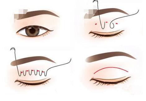 埋線雙眼皮術后會看到線頭出現嗎