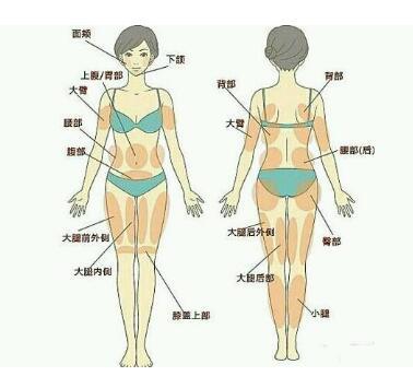 全身吸脂的六種方法,看看都有什么優點