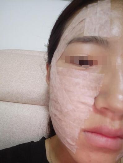 上海美莱整形姜兆辉做自体脂肪全脸填充案例 跟大家反馈下我的美
