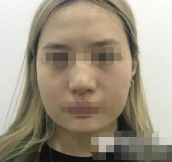 上海九院整形韦敏医生面部抽脂案例 价格12800-38000元