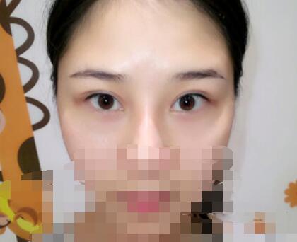 上海九院整形武晓莉医生双眼皮案例 术后198天的心得分享