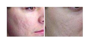 今日关注:疤痕手术治疗三大误区