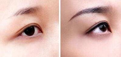 眉毛種植后多久能長出完整眉毛的效果