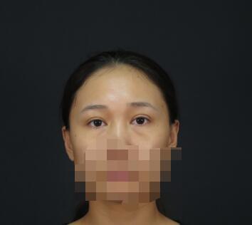 上海九院整形罗旭松激光去眼袋案例 两个月了分享心得和变化图了