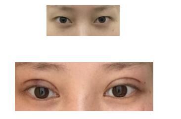 成都西区医院做双眼皮案例 术后半年恢复心得