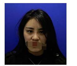 杭州维多利亚整形做自体脂肪填充太阳穴案例 术后心里美美滋滋的