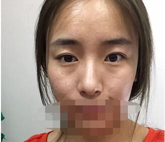 宜昌中爱医院做隆鼻案例 分享术后美鼻的心里体会