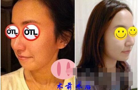 北京莫琳娜整形做玻尿酸注射垫下巴案例 整个?#25215;投?#21464;得好看了