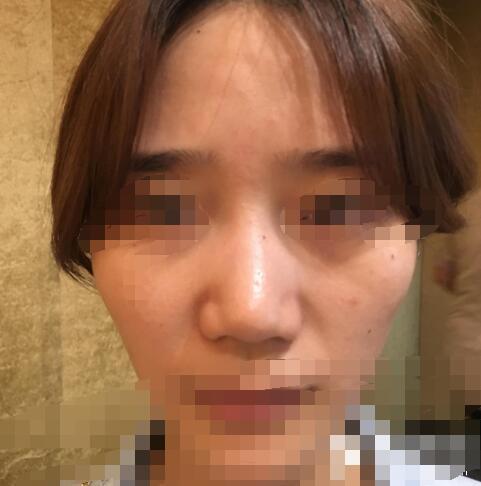 上海九院整形戴传昌医生隆鼻失败修复案例 术后92天很自然了