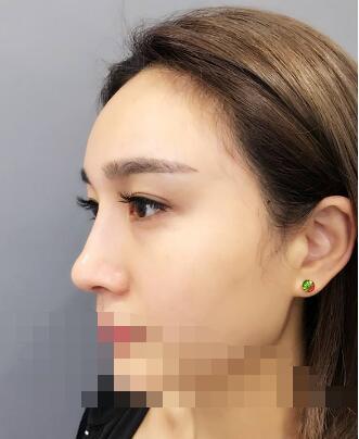 今日教你选择隆鼻假体材料
