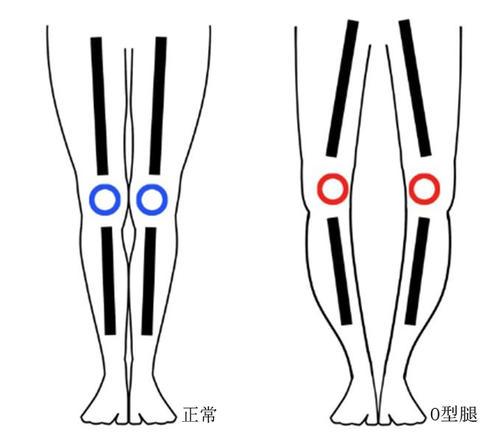 O型腿不必烦恼,通过运动可以改善
