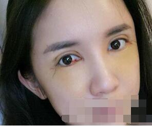 深圳妍熙整形周敏医生双眼皮+面部脂肪填充案例