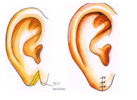 耳垂再造后的效果很自然