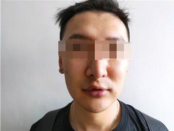 上海艺星整形童列健做美唇手术案例 美唇自然心里美滋滋的