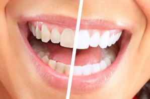 牙齒激光美白和冷光美白看看這三方面的對比