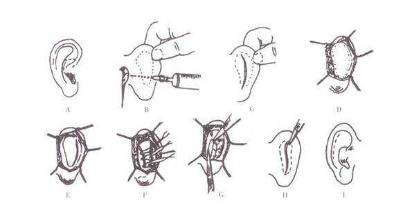 招風耳矯正手術會有特別的副作用嗎