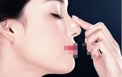 十一月注重:假体隆鼻手术