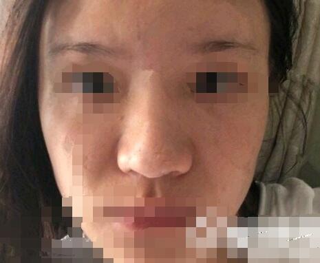 上海茸城女子医院整形王海龙医生硅胶假体隆鼻案例 术后90天自然