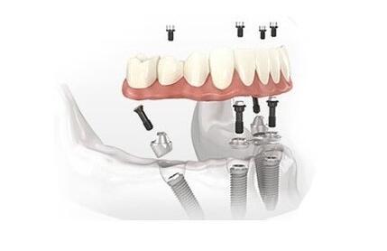 單顆牙種植不會影響個人生活以及工作