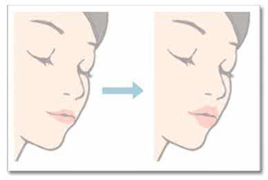 南宁自体脂肪丰唇的恢复期是多久,会反弹吗