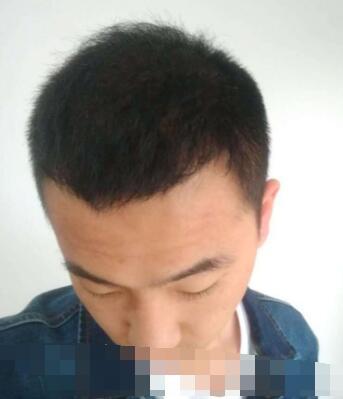 上海九院整形吴巍做秃顶植发案例