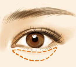 南宁日常消除水泡眼的方法有哪些