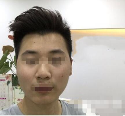 上海九院整形常雷医生激光祛痣案例 术后心情每天都好好的