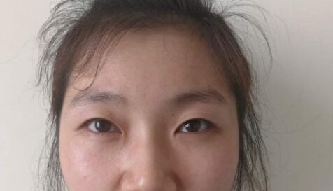 上海九院整形魏皎医生双眼皮案例 术后118天很漂亮心里偷偷的笑了