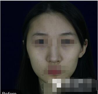 上海九院整形王涛医生面部轮廓手术案例 分享术后这65的变化