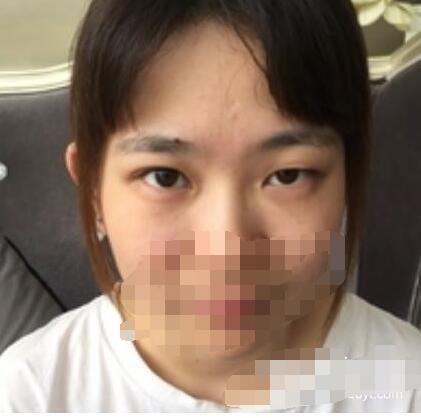 上海九院整形刘菲医生上睑下垂矫正案例 看看术后60天人很精神了