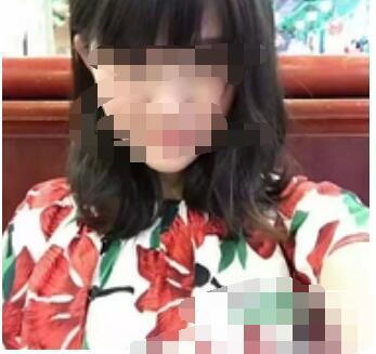 上海九院整形麻荪香医生小阴唇肥大修复手术案例 术后30天自信了
