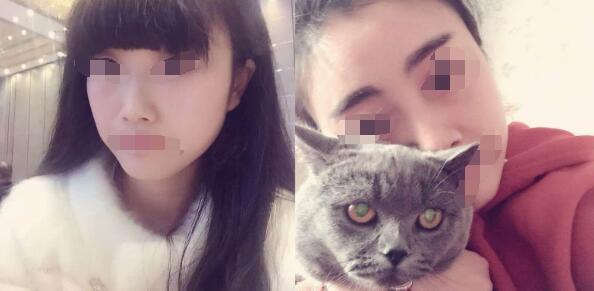 上海仁爱医院整形郭医生玻尿酸隆鼻案例 术后60天分享变美过程了