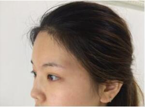 青岛伊美尔整形做隆鼻案例 反馈一下127天美鼻变化的感想