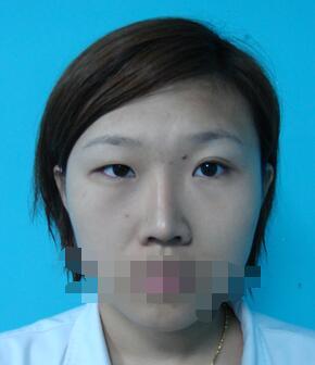 武汉九美整形周先华做双眼皮+丰面颊手术案例 反馈变美颜值的心得