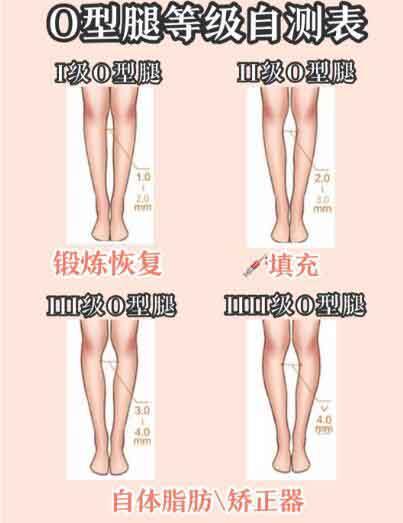 【整形項目】科學有效的O型腿矯正攻略