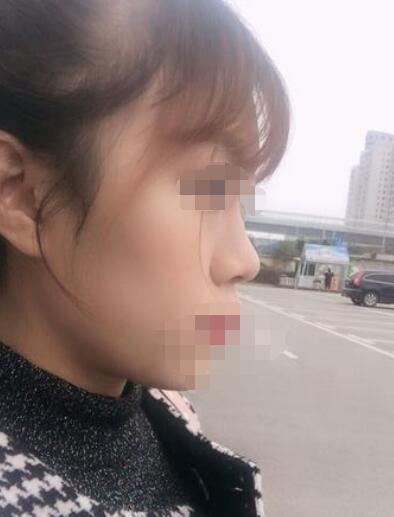 广州隆鼻案例分享 术后变美了自己很开心