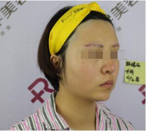 三亚红妆尚整形做膨体垫下巴案例 反馈下3个月后换了高颜值