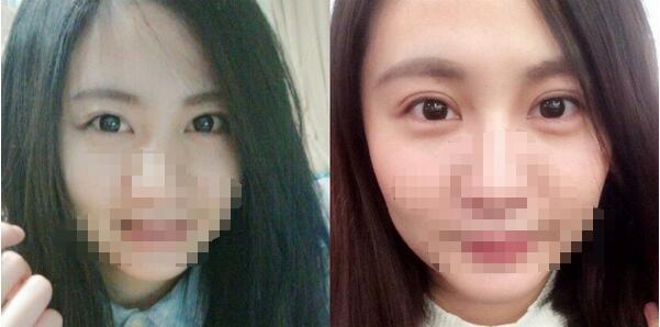 上海星和整形薛医生埋线双眼皮案例