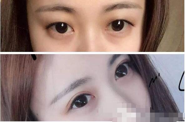 廈門華美整形于璇做眼部綜合術案例 反饋30天后大眼睛的變化感想