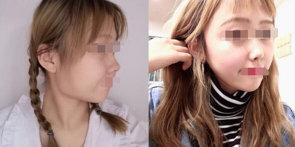 重庆时光整形河东镐医生取颊脂垫瘦脸案例 术后55天真的很美