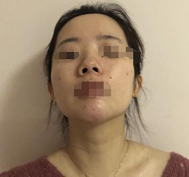深圳富華整形曹夢君醫生肋軟骨隆鼻案例 術后110天說下親身體會