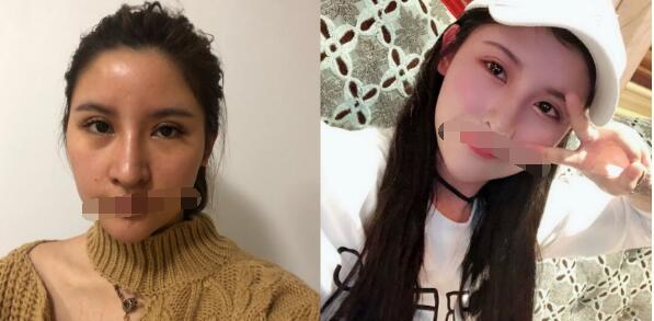 上海薇琳整形張院長做雙眼皮修復案例 請看60天后眼睛恢復情況